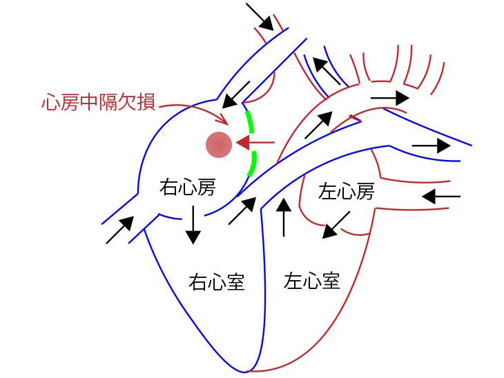 心房中隔欠損症図