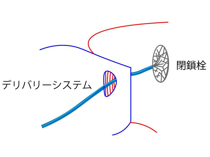 閉鎖栓とデリバリーシステム図