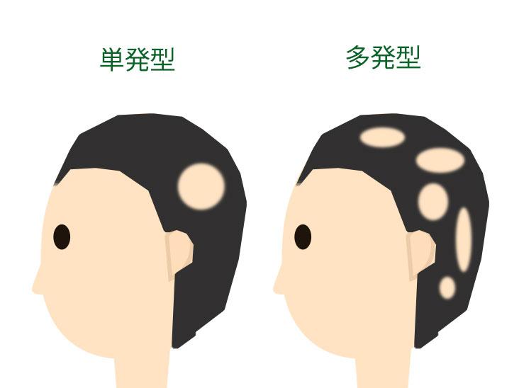 円形脱毛症の単発型と多発型の違いイラスト