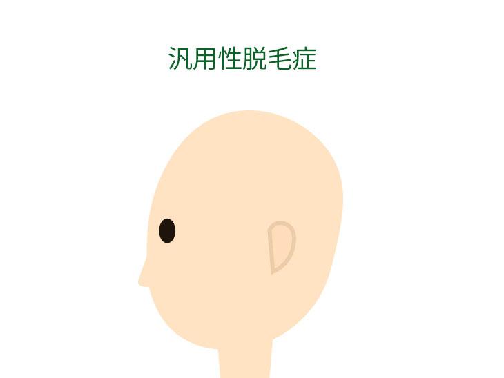 汎用性脱毛症イラスト
