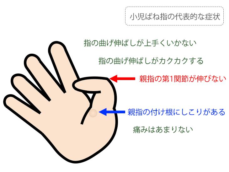 小児ばね指の代表的な症状解説イラスト