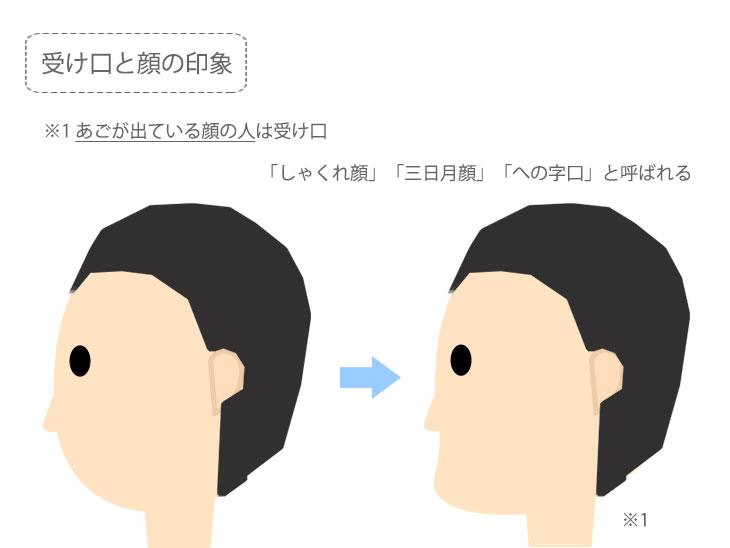 受け口と顔の印象解説イメージ