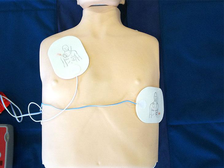 AEDのパッドを貼った様子