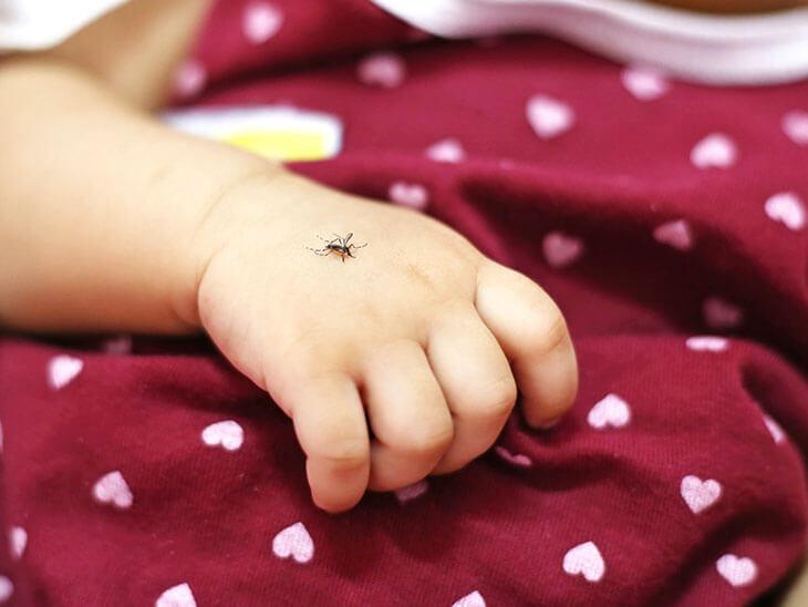 蚊に刺されている赤ちゃんの手
