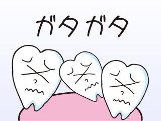 ガタガタの歯並び