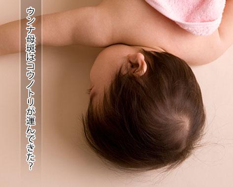 ウンナ母斑のあざはいつまで?気になる母斑の原因と治療法